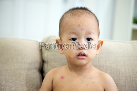 baby boy with chicken pox on